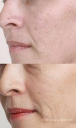 Гиперпигментации на лице лечение – Пигментация кожи и лечение пигментных пятен на лице