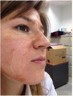 Пилинг отзывы фото до и после – Как я прошла курс химических пилингов (фото) — химический пилинг — запись пользователя Sveta V. (id1255139) в сообществе Все о красоте в категории Уход за лицом и шеей