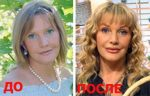 Елена проклова до и после пластики фото – : — 300 .