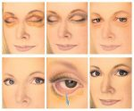 Пластика глаз век – Все о блефаропластике век: плюсы и минусы