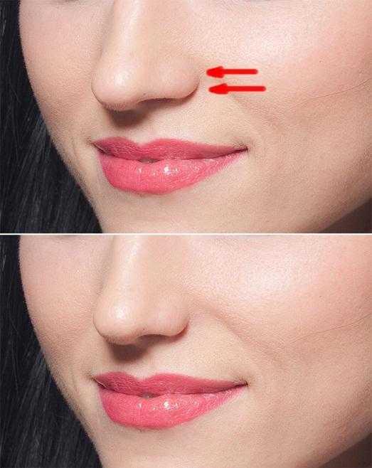 Как уменьшить нос упражнениями исправить искривление носа