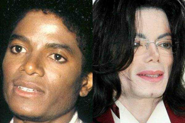 Как изменялось лицо Майкла Джексона на протяжении многих лет 38