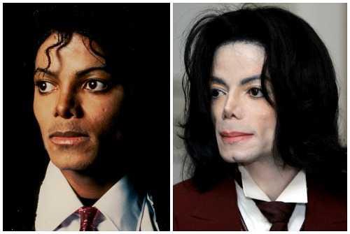 Как изменялось лицо Майкла Джексона на протяжении многих лет 14