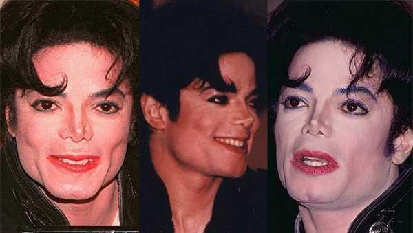Как изменялось лицо Майкла Джексона на протяжении многих лет 99